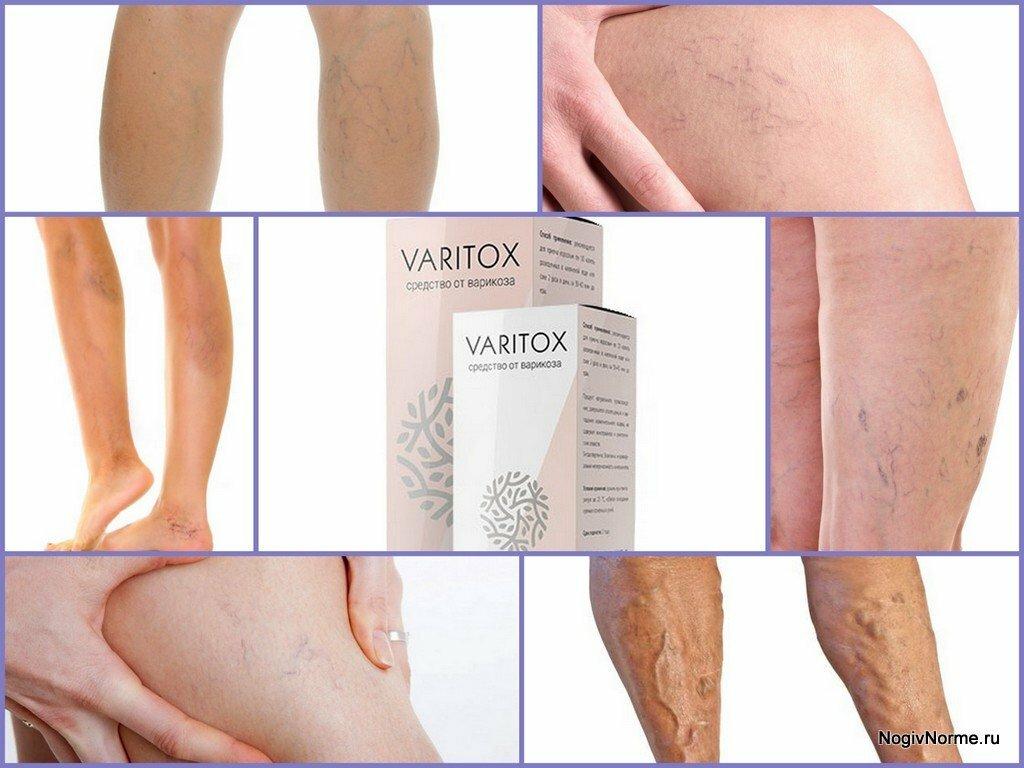 Varitox от варикоза в Энгельсе