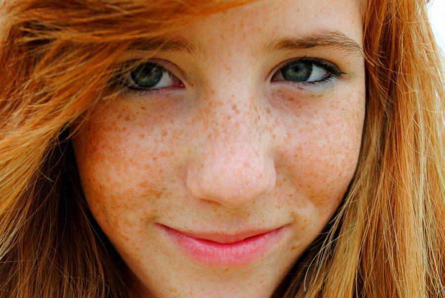 Facial freckles — 15