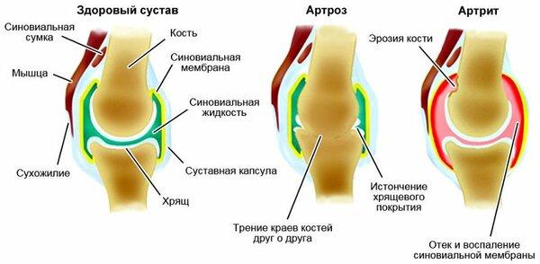 Лечение артроза голубой глиной