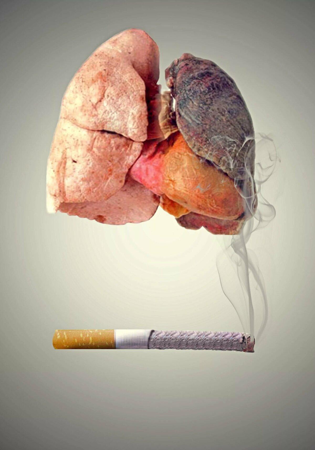 подобрали дым в легких картинки германия самая