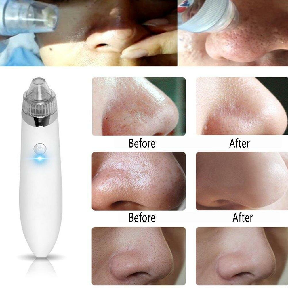 Профессиональный вакуумный очиститель кожи Beauty Skin Care Specialist в Ярославле