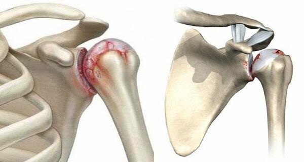 Синовит коленного сустава симптомы лечение народное