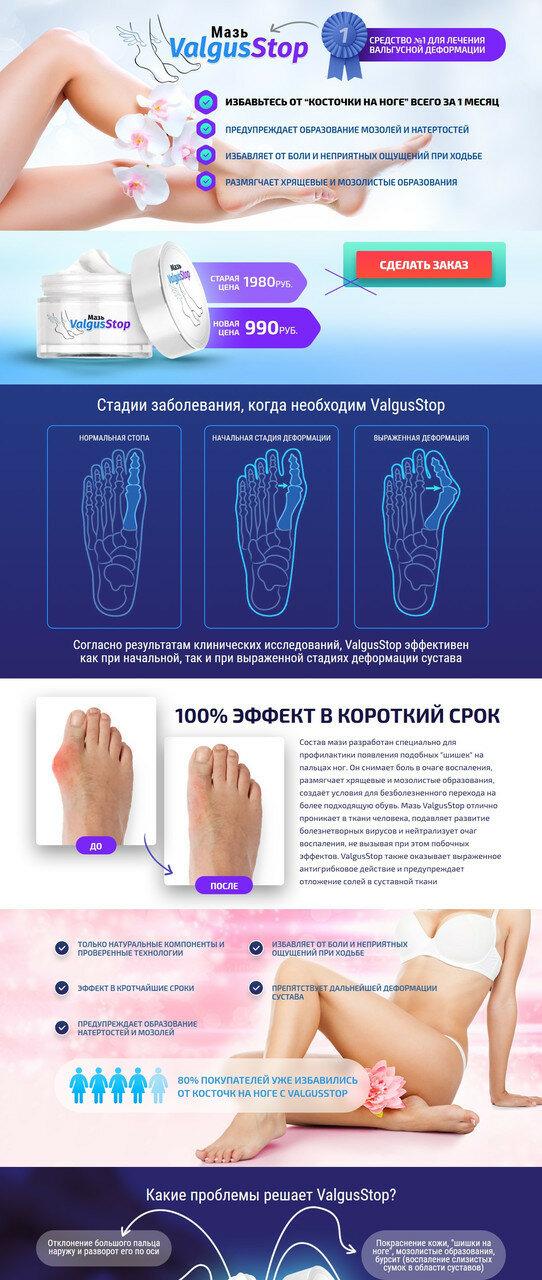 ValgusStop мазь от косточки на ноге в Запорожье