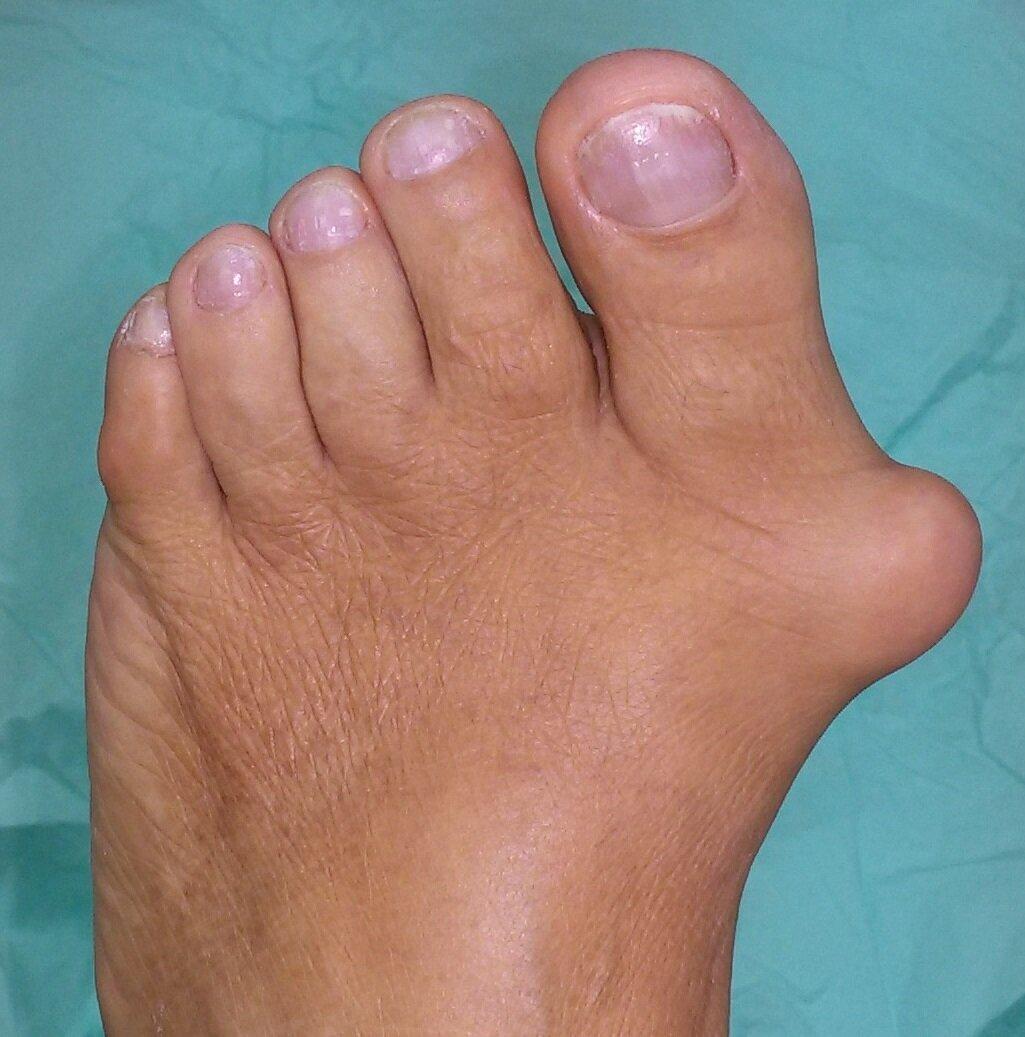 Шишки на пальцах ног артрит фото