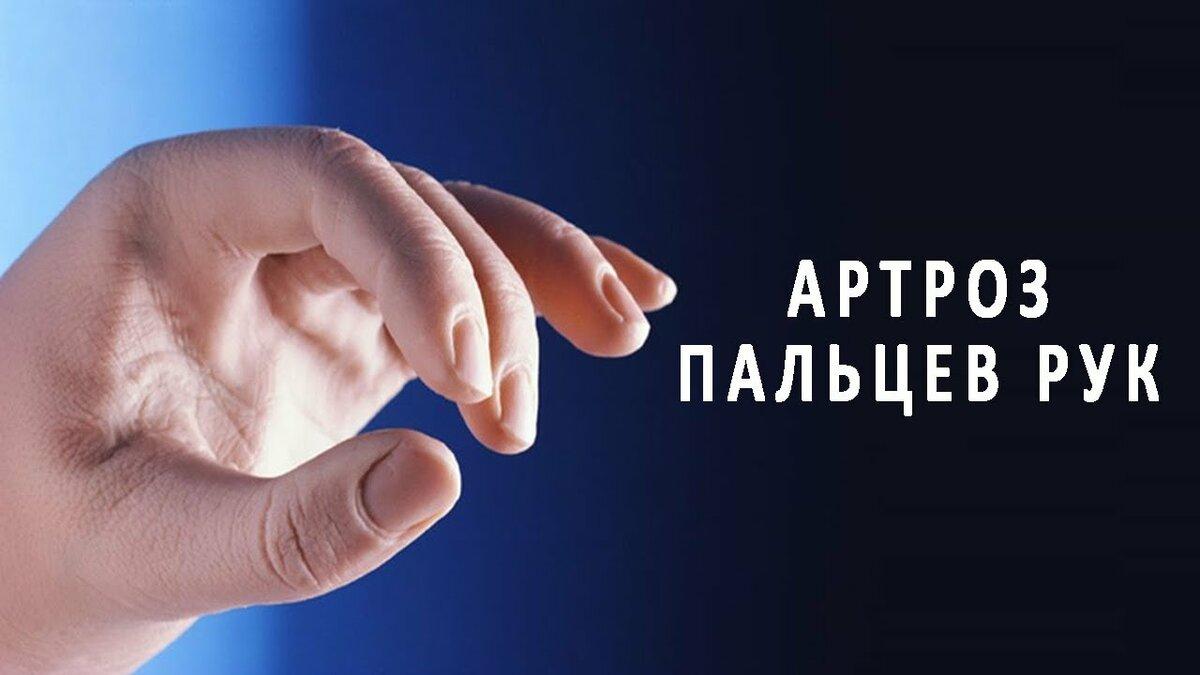 httpsustavyznajukakcom  Эффективные средства для лечения больных суставов остеохондроз артрит артроз и тпПри артрозе пальцев рук происходит поражение разрушение хрящевой и костной