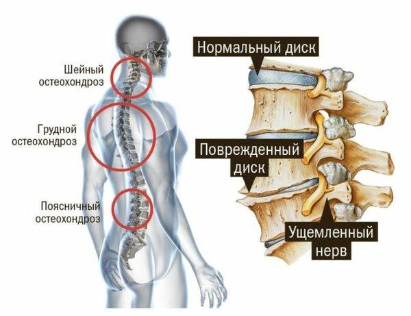 унковертебральный шейный остеохондроз допускаете ошибку. Могу