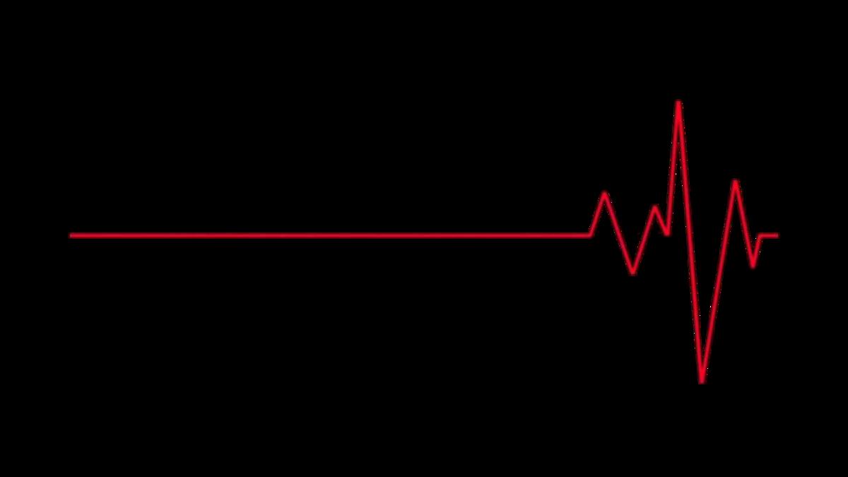 линия сердцебиения картинки этого женские