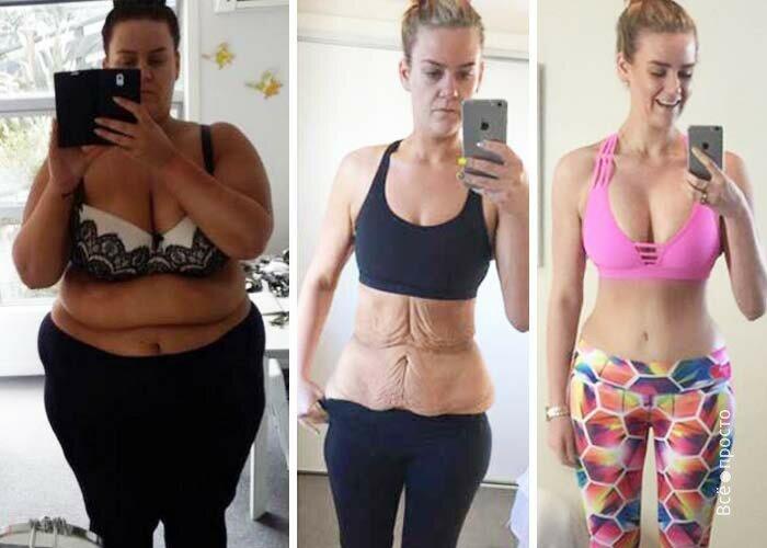 Что становится с грудью после похудения