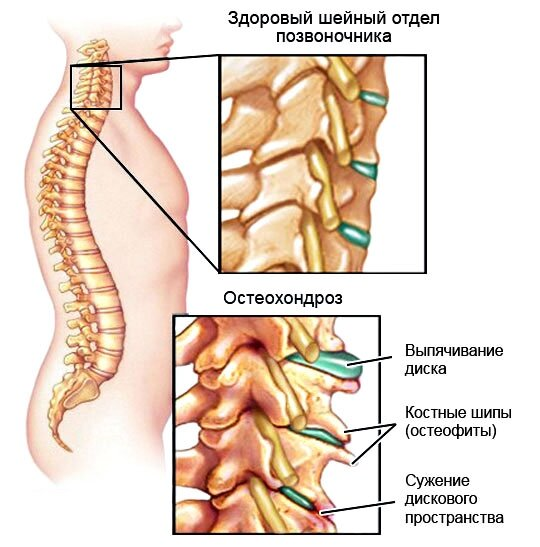 Ишиас лечение в новосибирске