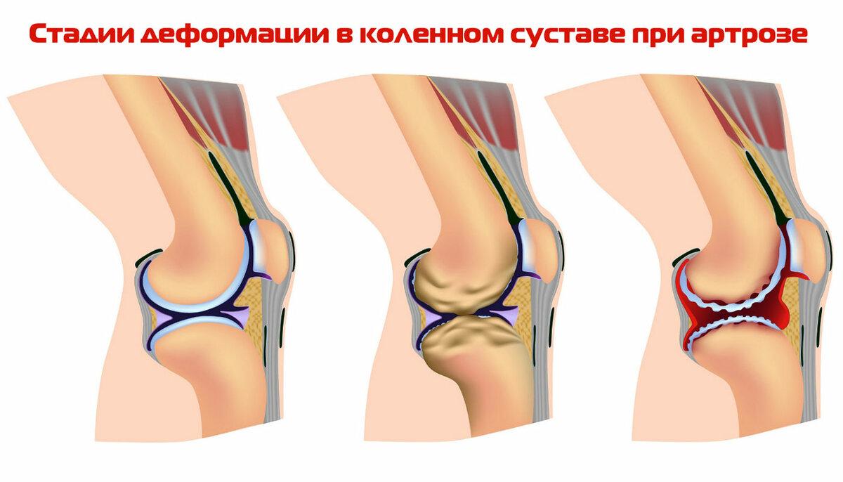 От чего происходит артрит и артроз фото