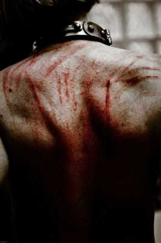 Спина и кровь картинки