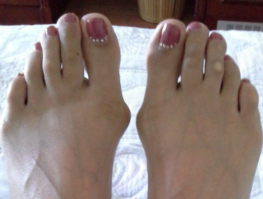Выпуклые пальцы ног фото