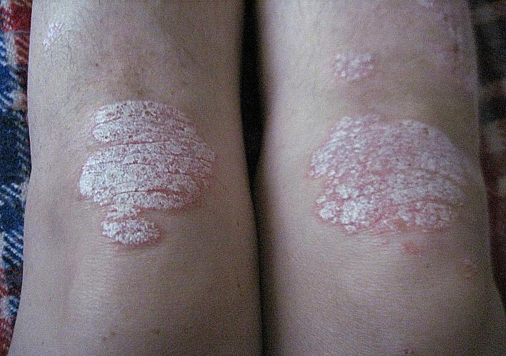 Симптомы и методы лечения псориаза на коленях и под коленями ...