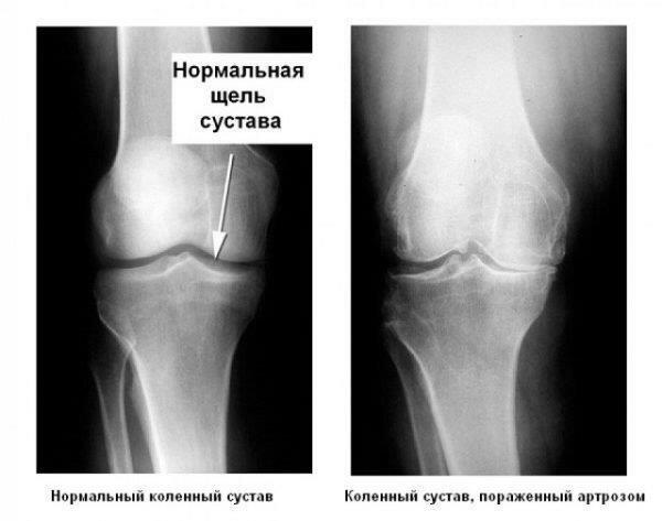 Гимнастика при артрозе коленного сустава симптомы и лечение