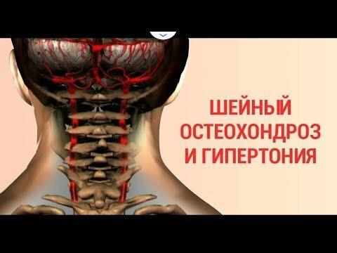 Шейный остеохондроз и гипертония связь фото