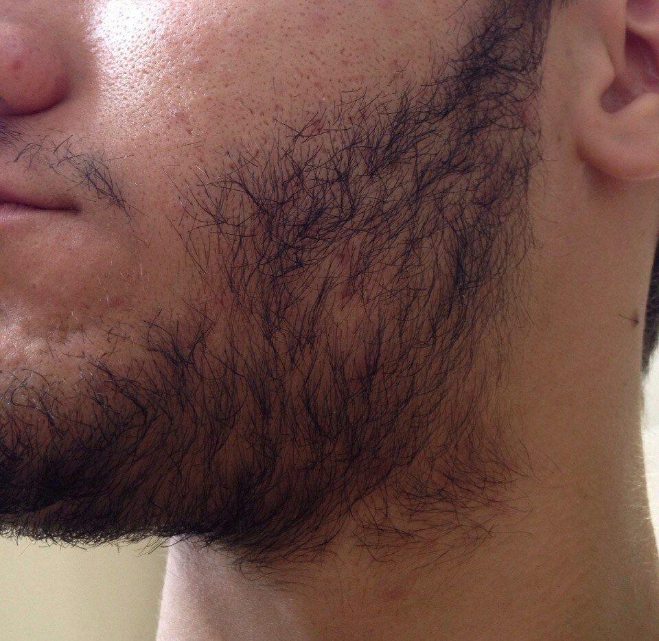 AZUMI для роста бороды в Россоше