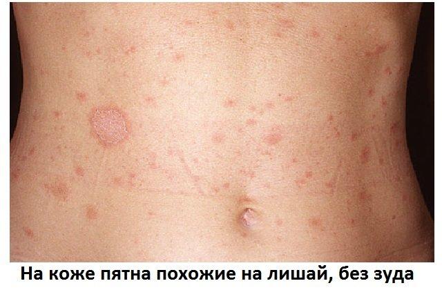 Красные пятна на теле, чешутся: причины появления