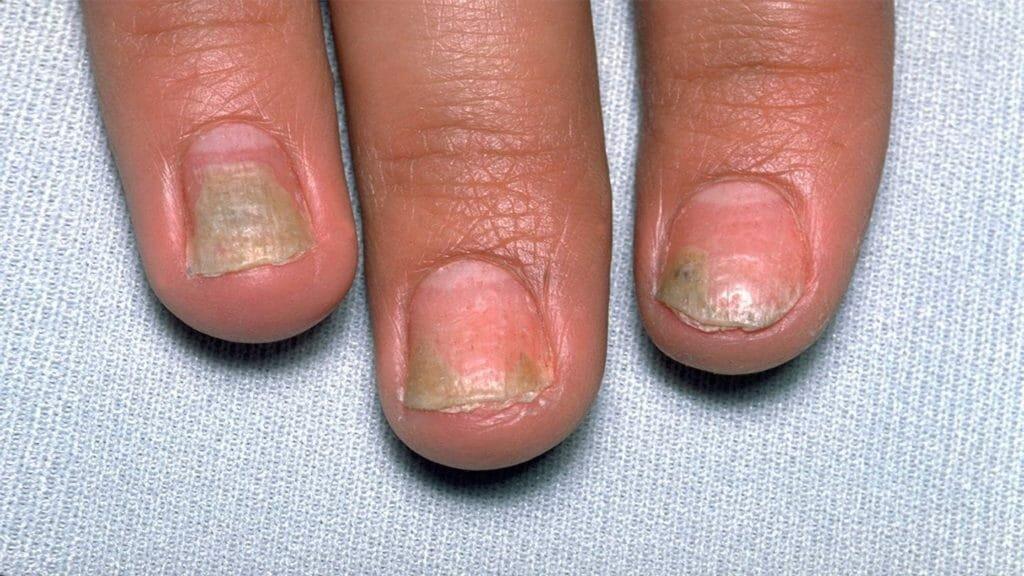 Заболевания кожи рук и ногтей в картинках