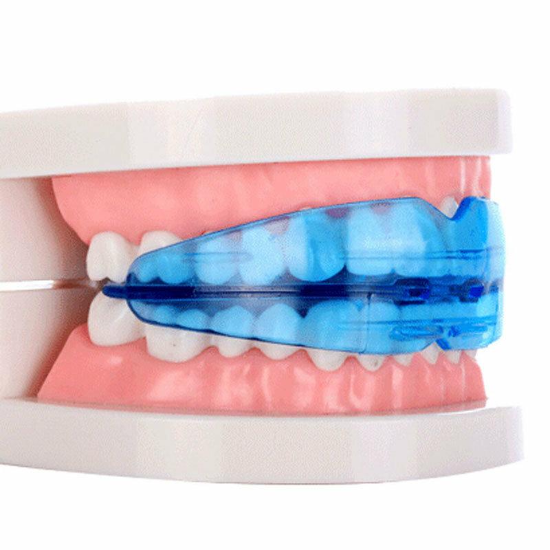 Капа Dental Trainer для выравнивания зубов в Абинске