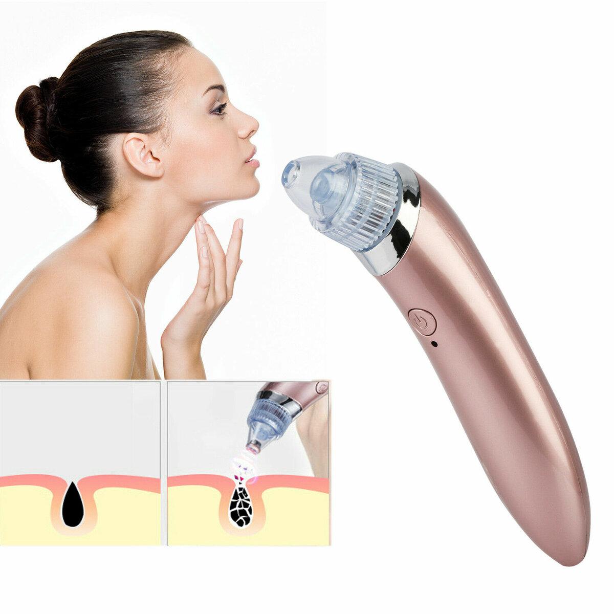 Профессиональный вакуумный очиститель кожи Beauty Skin Care Specialist в Переславле-Залесском