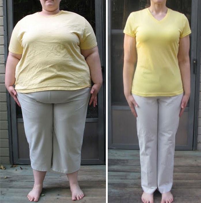 Очень Сильно Похудел Фото. Впечатляющие результаты похудения