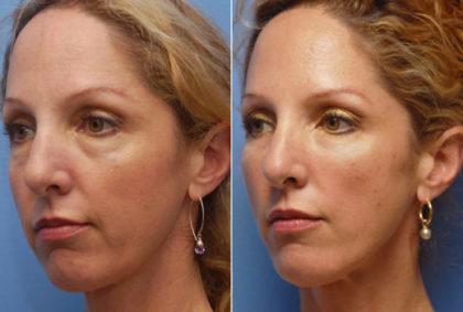 Гиалуроновая кислота колоть или не колоть  Beauty Insider