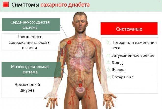 Какие симптомы при диабете у мужчин
