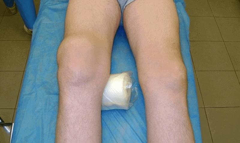 Артрит артроз коленного сустава лечение народными средствами фото