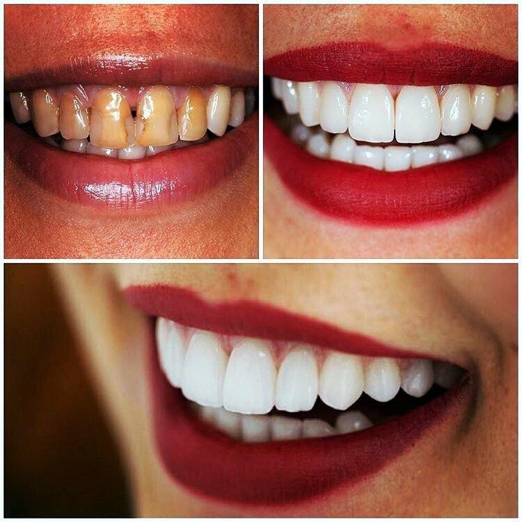 Виниры на зубах картинки