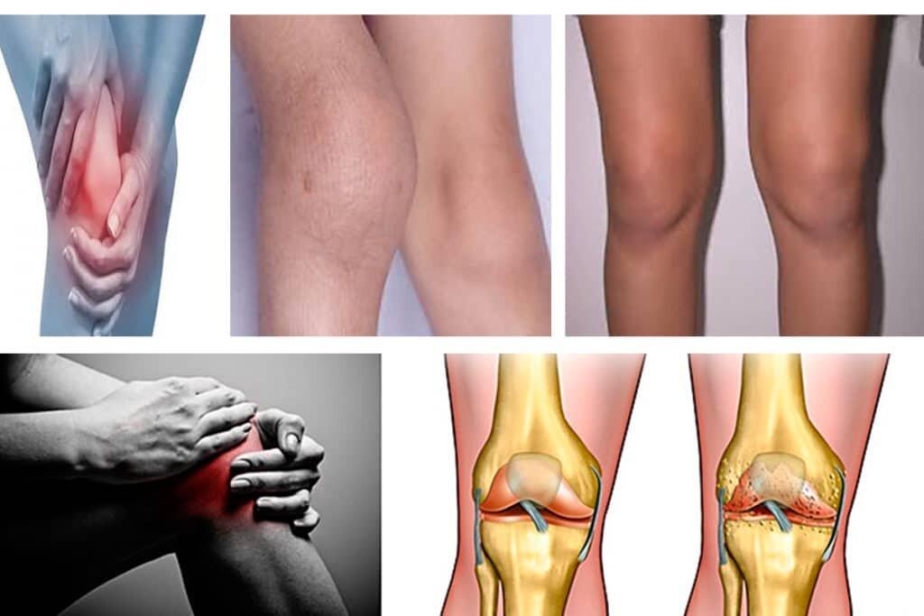 Посттравматические артрозы и артриты и артрозы фото