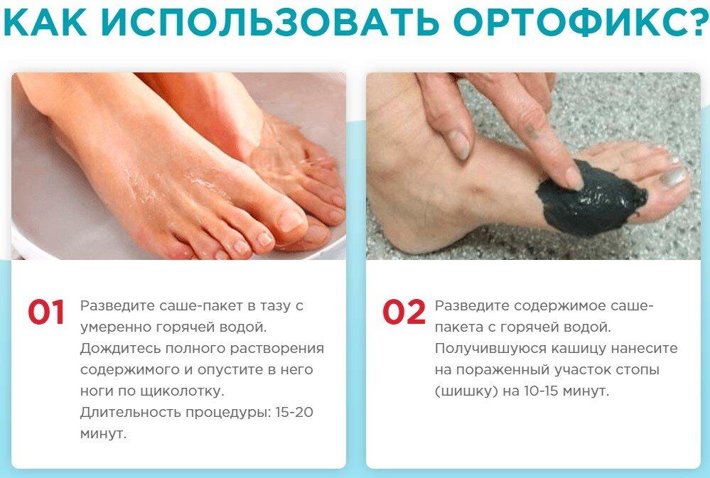 OrthoFix от вальгуса в Брянске
