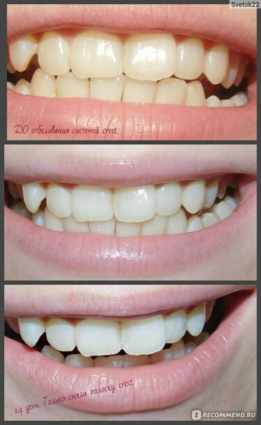 Lasersko izbjeljivanje zubi cijena