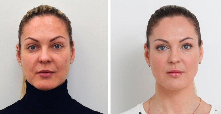 больше подходят мезотерапия лица фото до и после отзывы если