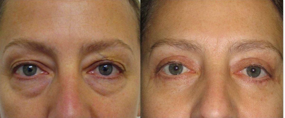 Наиболее популярными и востребованными методами устранения возрастных изменений вокруг глаз являются:.
