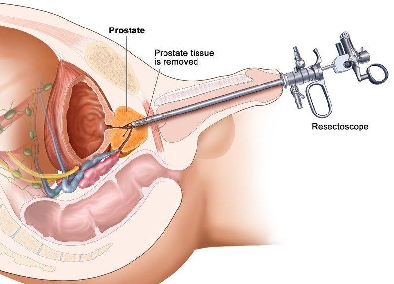 Prostata help MP-1 от простатита в Кашире. Простатит везикулит ...