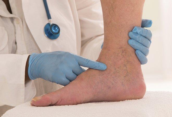 Используя мази от тромбофлебите на ногах обязательно ...