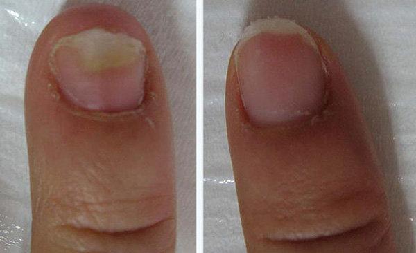 Передача «жить здорово» о грибке ногтей на ногах.