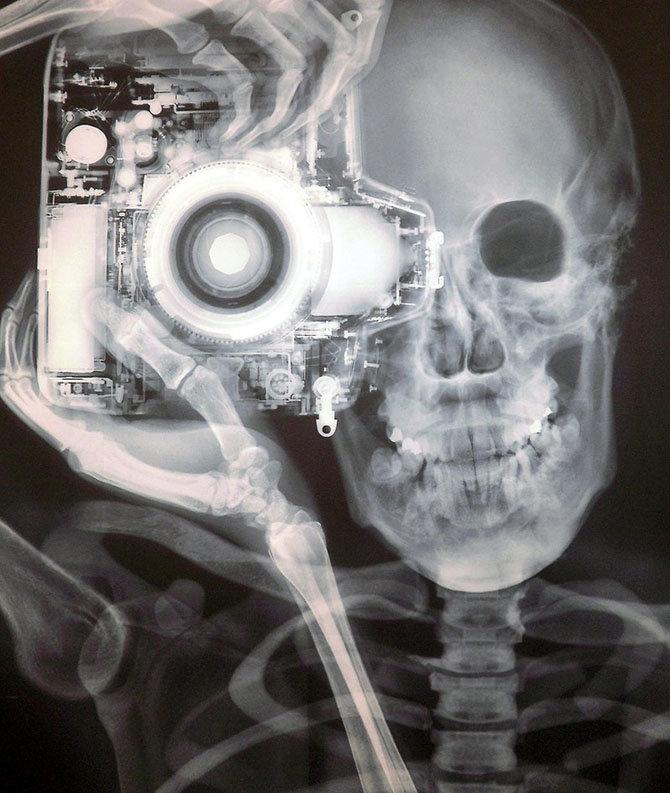 Открытки рентген, фоны для