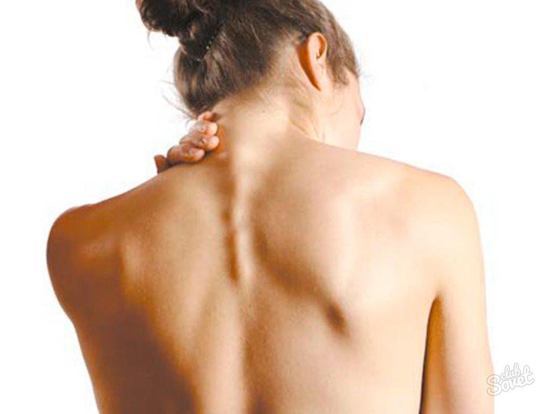 Шейный остеохондроз симптомы лечение травами
