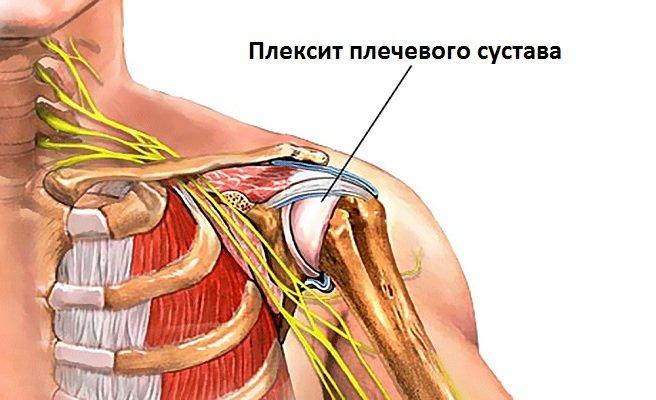 Плексит плечевого сустава лечение народными средствами