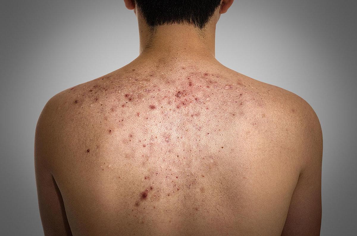 угревая сыпь на плечах спине - 13