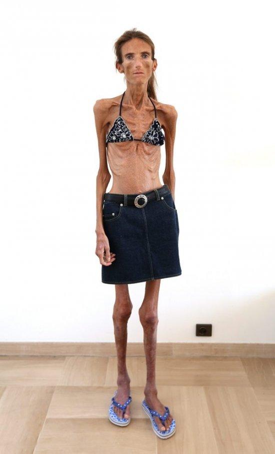 нет самые худые девушки мира откровенные фото вытер член платье