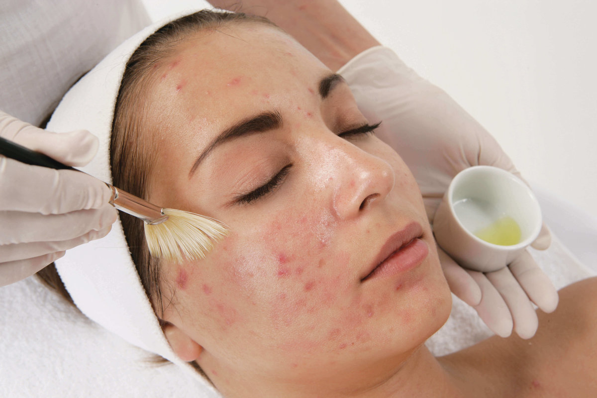 Лечение акне и постакне косметология