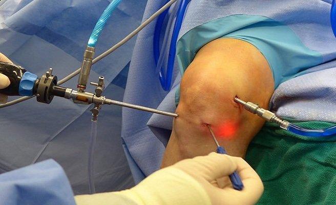 Артроскопия коленного сустава удаление мениска видео наколенник при синовите коленного сустава