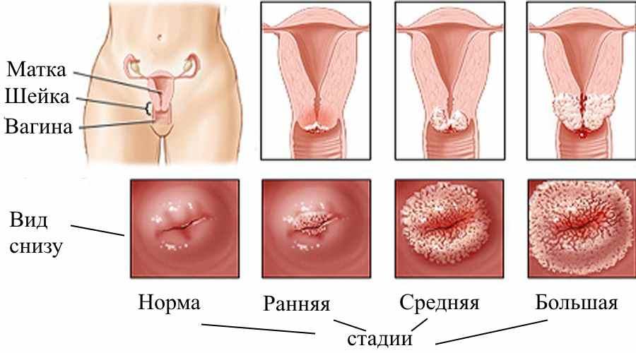 Папиллома шейки матки: причины, симптомы, лечение инфекцииhttps ...