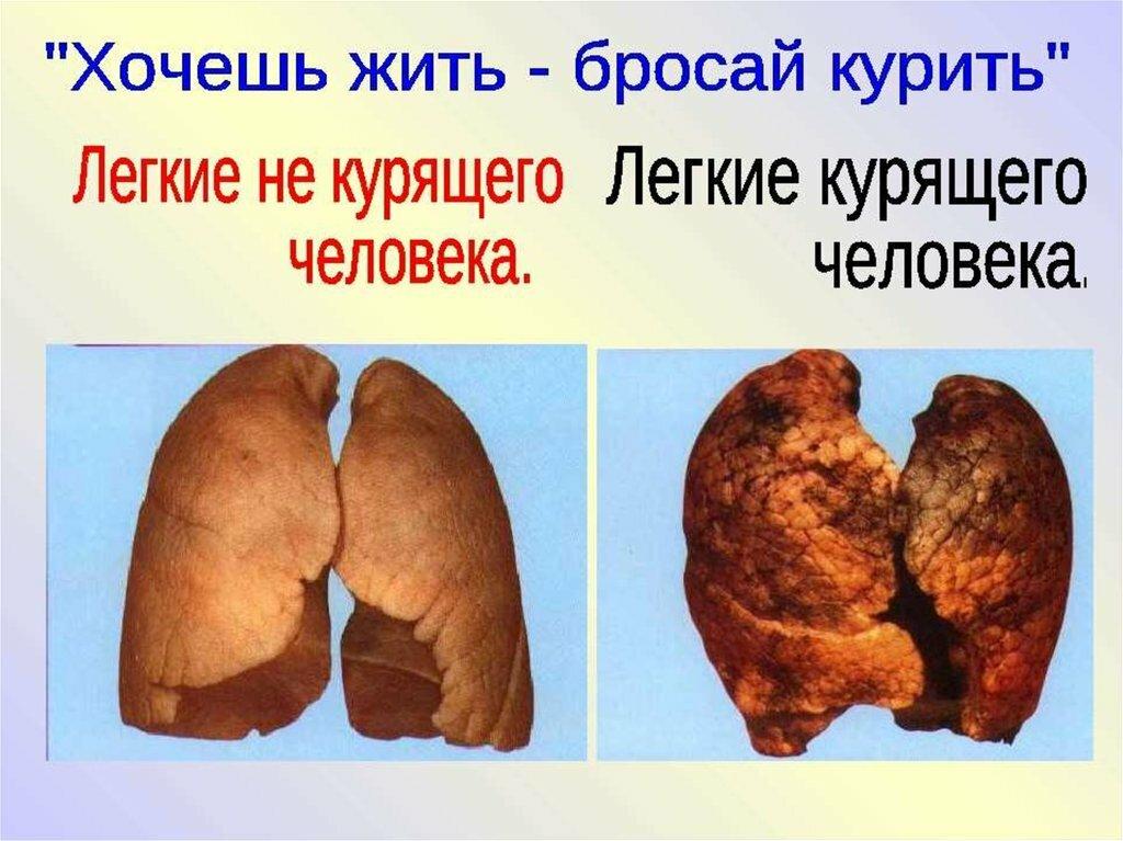 Картинки для классного часа о вреде курения