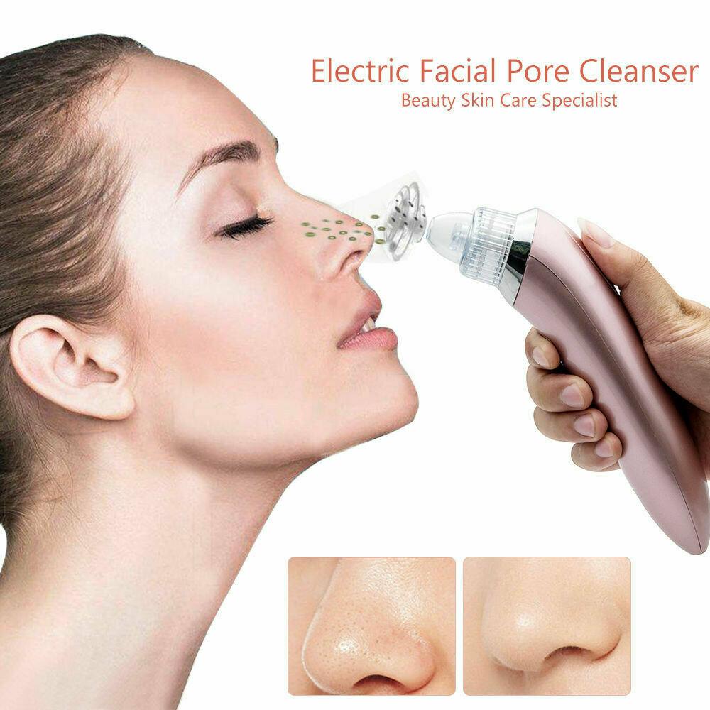 Профессиональный вакуумный очиститель кожи Beauty Skin Care Specialist в Новотроицке