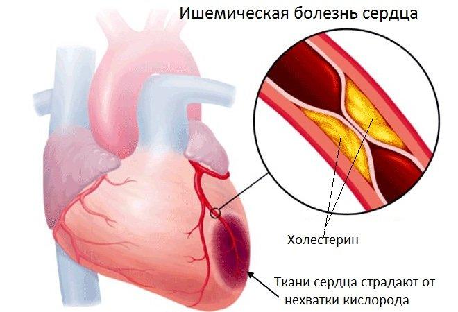 Медикаментозное лечение ишемической болезни сердца (ИБС), чем ...
