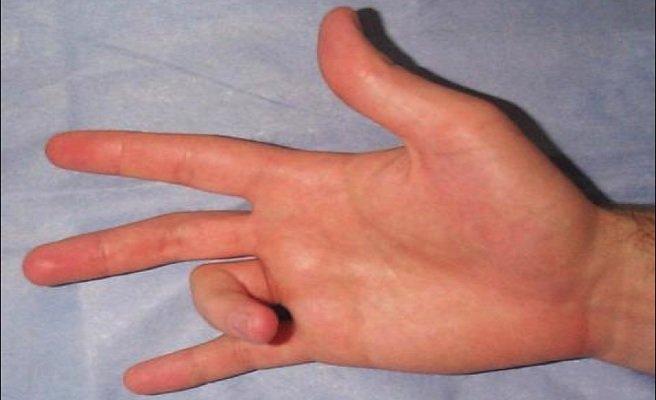 Что такое стенозирующий лигаментит внутренней боковой связки ...