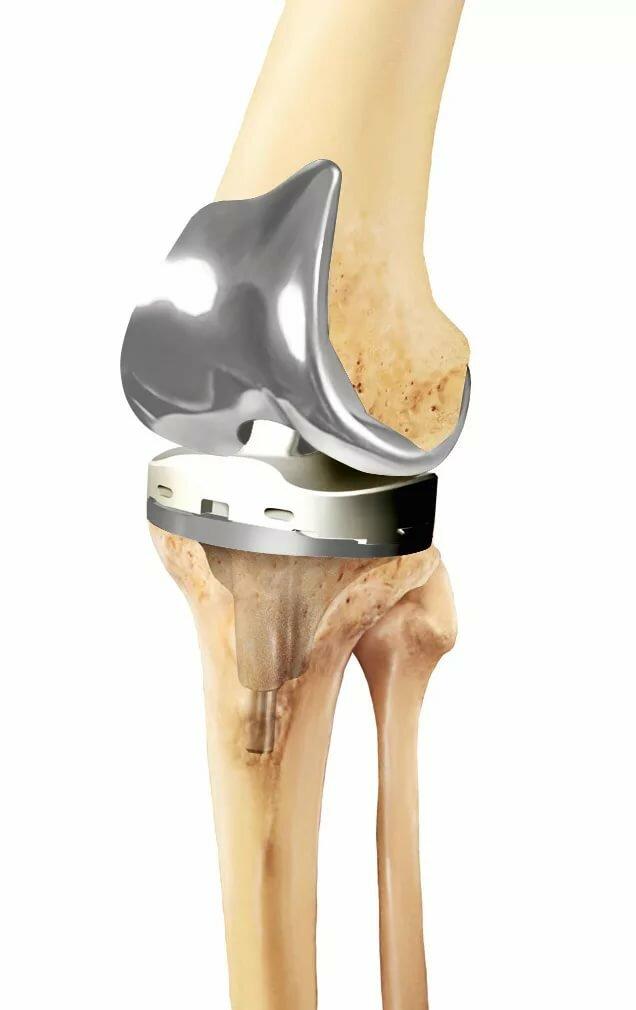 продумали протезирование коленного сустава картинки предварительное